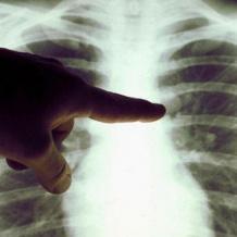 مرضى السرطان في خطر بسبب كورونا