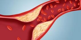 عوامل ترفع مستوى الكوليسترول في دمك