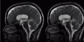 فيديو: هكذا ينبض الدماغ مع القلب..لقطات مذهلة