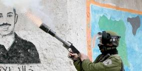بتر أصابع طفل إثر قنبلة أطلقها جنود الاحتلال نحوه