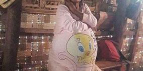 امرأة ظنت أنها حامل بتوأمين والحقيقة اصابتها بصدمة