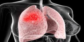 توقُّع ارتفاع وفيات النساء جراء سرطان الرئة بحلول 2030