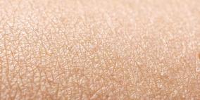 علماء يحذرون من بكتيريا قاتلة تعيش على جلد البشر