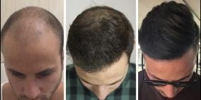 توصيات للمحافظة على الشعر بعد عملية الزراعة