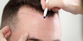 """تقنية طبية تتيح لك تخزين شعرك لـ """"أيام الصلع"""""""