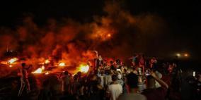 اصابة 3 مواطنين برصاص الاحتلال شمال غزة