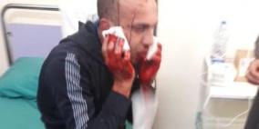 إصابة شاب برصاص في فمه بالخليل
