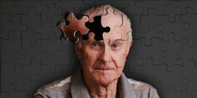 بالكهرباء يمكن إعادة الشباب إلى الذاكرة في الـ 70 من العمر