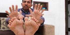 شاهد.. الرجل صاحب أكبر عدد أصابع في العالم