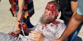 محدث بالصور.. الاحتلال يقمع المصلين ويصيب العشرات في الأقصى