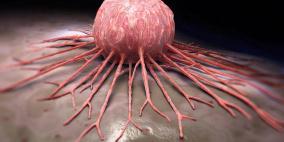 علماء يكتشفون ما يكبح تطور مرض السرطان