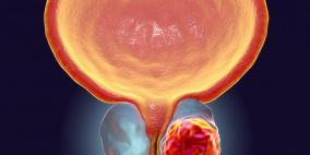 الفطر يحمي الرجال من سرطان البروستاتا