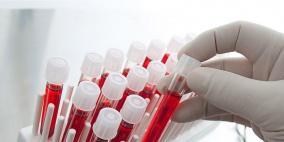 اختبار دم جديد يرصد 20 نوعا من السرطان