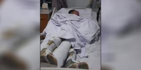 الطفل أحمد مهدد بالطرد من المشفى.. وعلاجه يتحول لقضية خلافية !