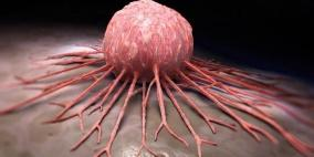 علماء يطورون طريقة جديدة لتدمير الخلايا السرطانية