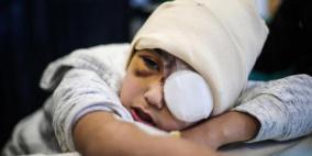 رصاصة الاحتلال جعلته يرى بعين واحدة فقط