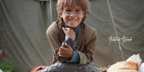 نظارة حديدية من بقايا أسلاك تالفة تغيث طفلاً نازح في اليمن
