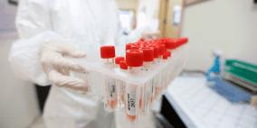 وفاة و170 إصابة جديدة بفيروس كورونا و428 حالة تعافٍ