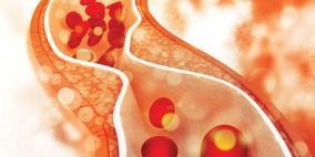 تصلب الشرايين وارتفاع ضغط الدم..ما الفرق بينهما؟