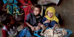 الأمم المتحدة تحذر من مجاعة مُدمرة في اليمن