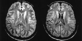 المادة البيضاء في الدماغ..تعرف عليها