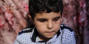 محمد.. طفل أطفأ الاحتلال نور بصره