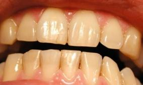 كيف تحمي أسنانك من الاصفرار الناتج عن القهوة؟