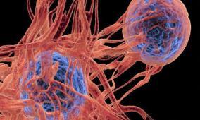 """علماء يدرسون نشأة """"السرطان"""" بهدف العلاج المبكر"""