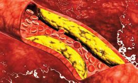 فاكهة تساهم في خفض الكوليسترول