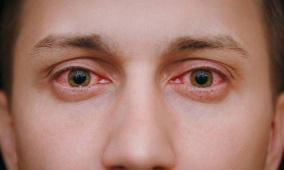 علاج احمرار العين