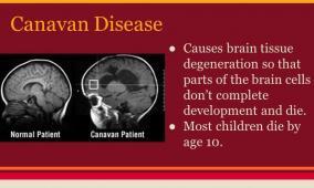 تعرف على مرض كانافان النادر
