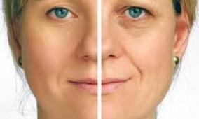 5 نصائح مفيدة لحماية الجلد حول العينون