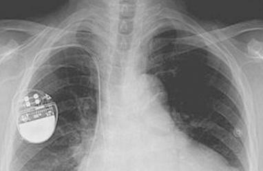 الهاكرز يمكنهم قتل مرضى القلب بإيقاف أجهزة تنظيم ضربات القلب