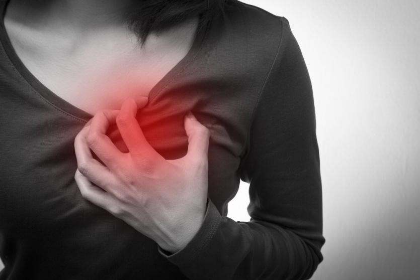 نوبة قلبية - توضيحية